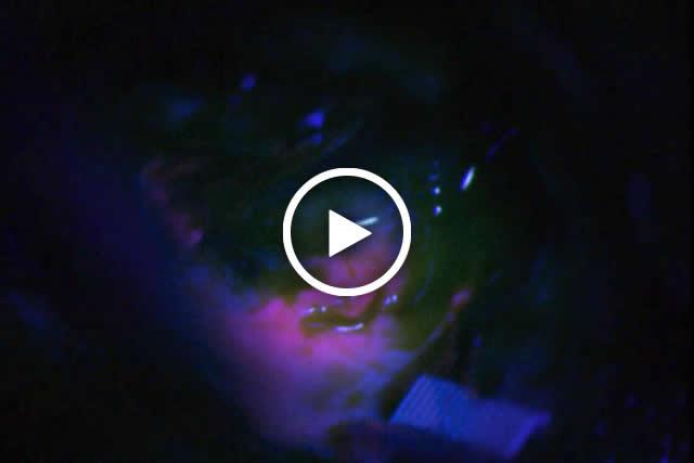 Glioma video